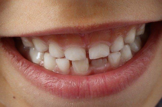 Zakaj izbrati nevidni zobni aparat?